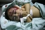 luka parah bocah palestina